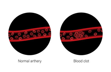 Brain stroke ishemic and hemorrhagic
