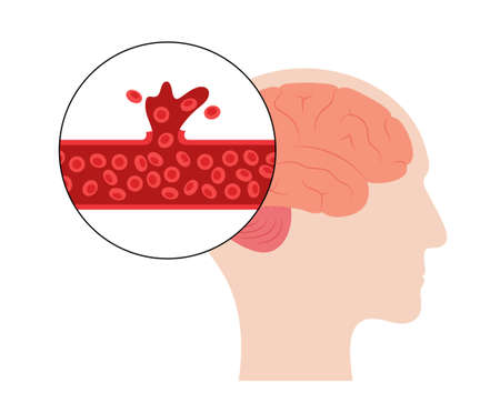 Brain stroke hemorrhagic  イラスト・ベクター素材