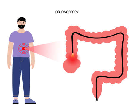 Colonoscopy procedure concept