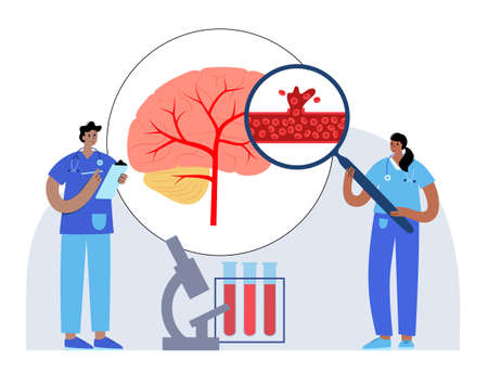 Brain stroke hemorrhagic 矢量图像