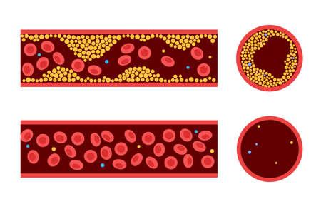 Cholesterol blood artery