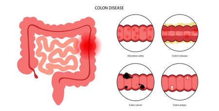 Intestines diseases concept