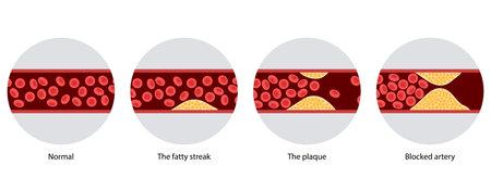 Cholesterol and atherosclerosis 向量圖像