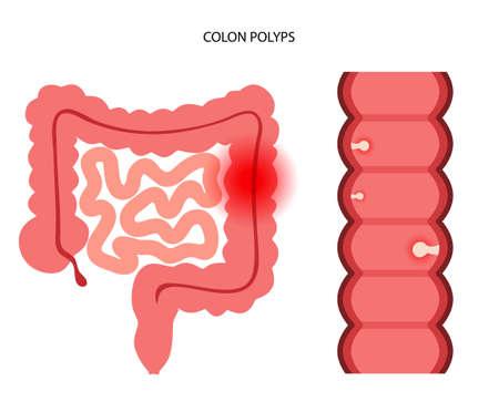 Colon polyps inflammation
