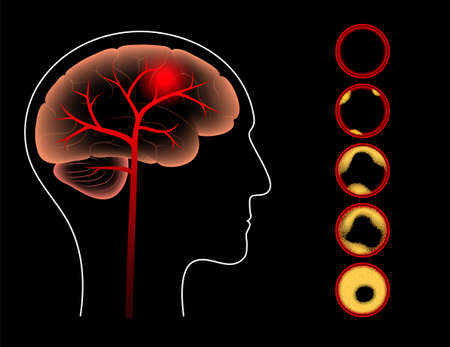 Ischemic brain stroke, arteriosclerosis in human head silhouette. Cholesterol in blood vessels. Fat cells in vein and artery. High ldl and hdl level. Blocked vascular concept flat vector illustration.