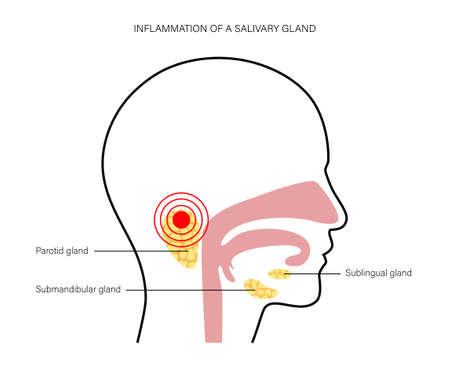 Inflammation of a salivary glands in human mouth. Parotid, submandibular, and sublingual gland. Produce of saliva through a system of ducts. Xerostomia oral disease. Medical flat vector illustration. Vector Illustration