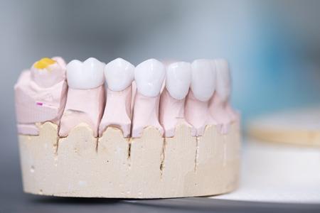 zircon dentures on a gypsum jaw - Ceramic dentures - Stok Fotoğraf - 80885589
