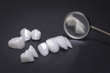 Dental mirror and dentures on a dark background - Ceramic veneers - lumineers