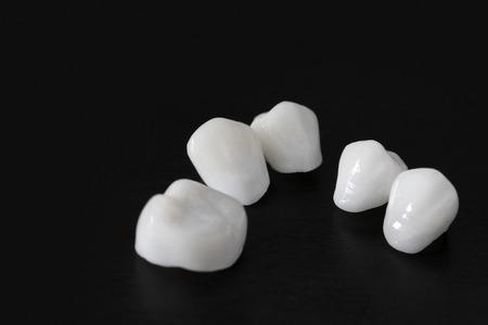 Zircon dentures Ceramic veneers lumineers