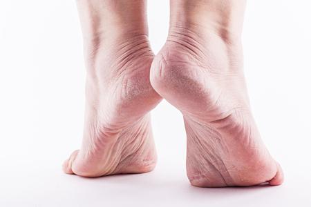 vochtarme huid op de hielen van vrouwelijke voeten