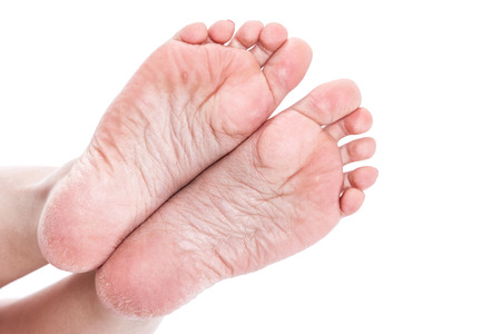 callus: dry dehydrated skin on the heels of female feet with calluses