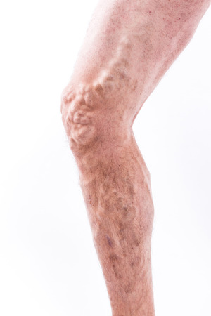 enlarged: human leg with blocked veins, thrombosis, phlebitis, and standing on a white background, with depth of field Photo