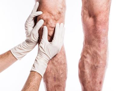 menselijk been met geblokkeerde aderen, trombose, flebitis, en staande op een witte achtergrond, met een diepte van gebied Photo Stockfoto