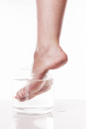 callus: foot girl with a dry and rough skin and calluses on the heel moistened with water from the jar. Stock Photo