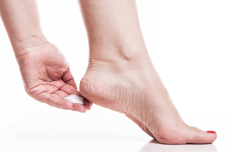 callus: care for dry skin on the well-groomed feet and heels with creams for the skin and feet.