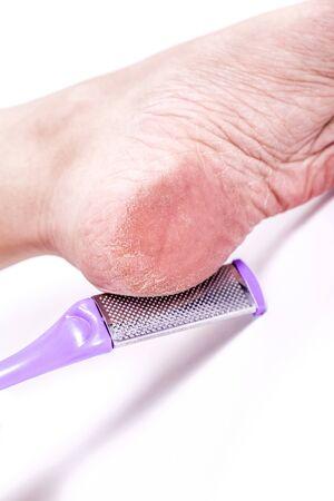 callus: woman treats dehydrated skin heels legs pedicure tool grater for heels Stock Photo