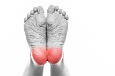 발과 발 뒤꿈치에 손질 된 피부, 갈라진 옥수수