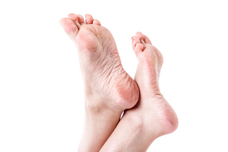 callus: female legs with overdried dehydrated dry skin on heels closeup, cracked and dry skin on heels