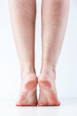 groomed dry skin on feet and heels, cracked corn Stock fotó