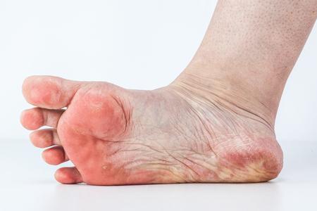 gedehydrateerde huid op de hielen van vrouwelijke voeten