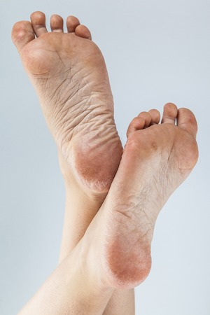 dehydrated skin on the heels of female feet Stockfoto