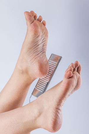 dehydrated skin on the legs, with a grater for heels