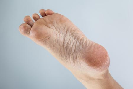 verzorgde droge huid op voeten en hielen, gebarsten maïs Stockfoto
