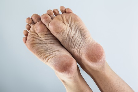 dehydrated skin on the heels of female feet Standard-Bild