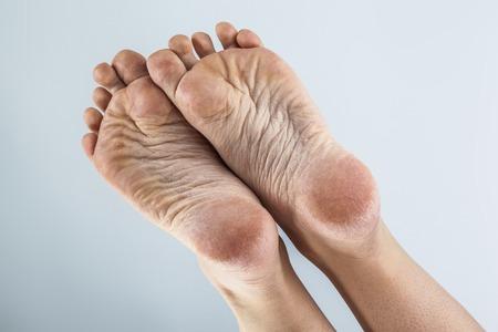 dehydrated skin on the heels of female feet Foto de archivo