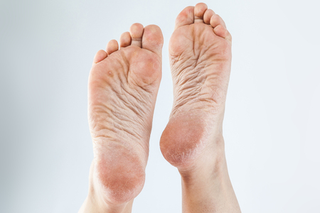 dry dehydrated skin on the heels of female feet with calluses