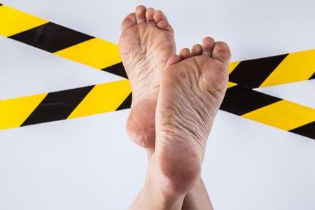 verzorgde droge huid op voeten en hielen, gebarsten maïs