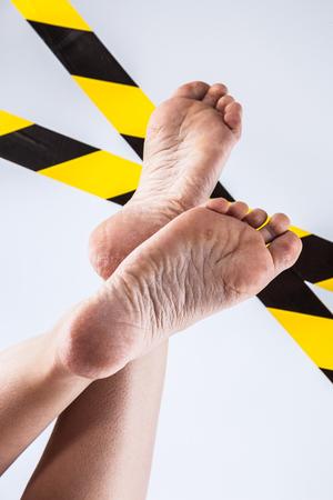 groomed dry skin on feet and heels, cracked corn Stockfoto