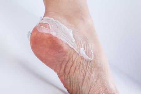 groomed dry skin on feet and heels, cracked corn Stock Photo