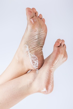 groomed dry skin on feet and heels, cracked corn Stock Photo