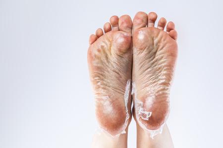 足とかかと、割れたトウモロコシ乾燥肌の手入れ