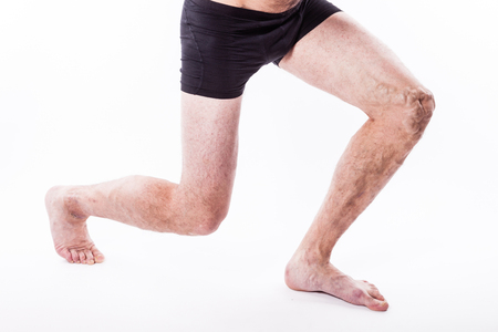 human leg with blocked veins, thrombosis, phlebitis, and standing on a white background, with depth of field Photo 版權商用圖片 - 89359038