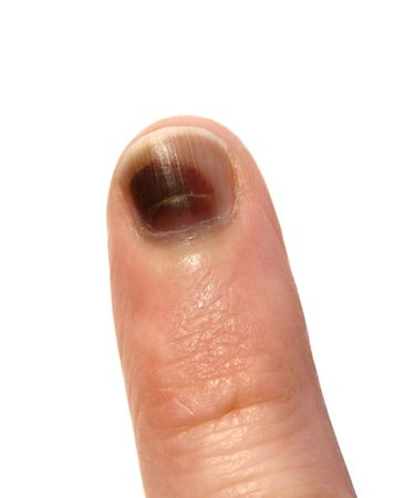 contusion: small finger on the white background, wound and bruise