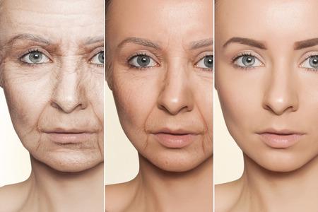 Concetto di bellezza l'invecchiamento della pelle, procedure anti-invecchiamento sul viso di donna caucasica Archivio Fotografico - 66952050