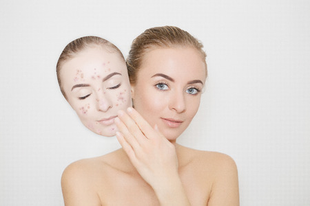 put away bad sking with pimples Stock Photo
