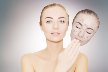 woman takes away mask with acne and pimples, skin renovating concept