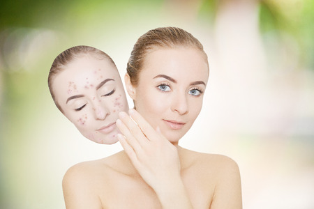 blackhead: woman takes away mask with acne and pimples, skin renovating concept