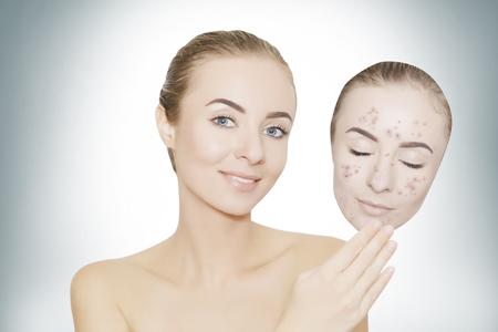 vrouw wegneemt masker met acne en puistjes, huid renovatie begrip