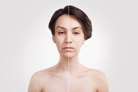 two halves of asian woman face