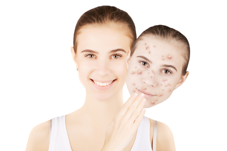 skin problems: face with healthy skin and face with blemishes