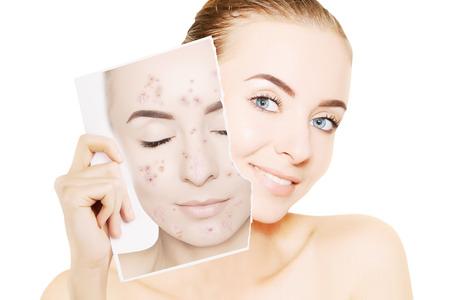 Prachtige vrouw met perfecte huid laat haar gezicht vrij van puistjes