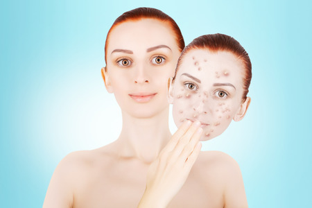 red haired female model releases her sjin from blemishes Stock Photo
