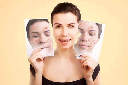 varicela: Mujer lucha piel fea, concepto de cuidado de la piel