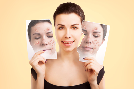 woman fights ugly skin, skincare concept