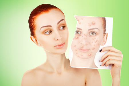 red haired woman fights with pimples Stock Photo