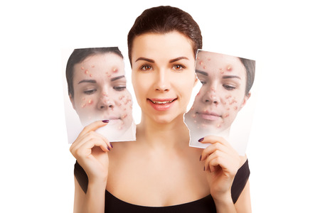bathroom mirror: woman fights ugly skin, skincare concept